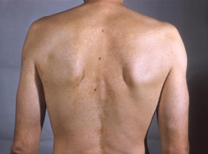 Tinea versicolor infection due to Malassezia furfur species depicted on a patient's back and upper torso.